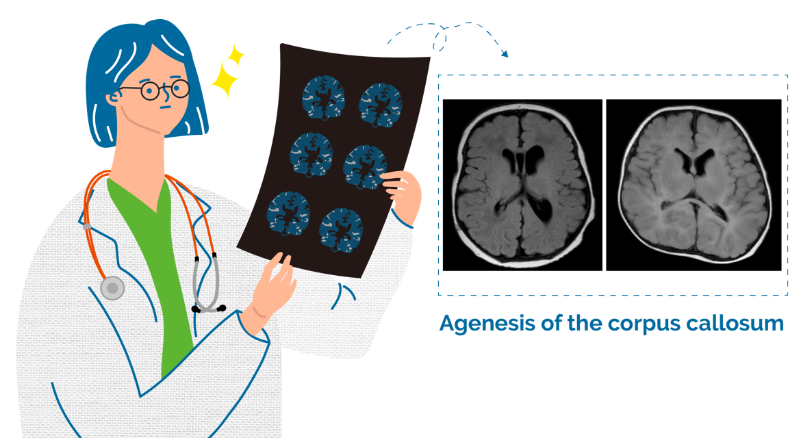 A female doctor holding a brain MRI result and taking a close look at the result, indicating agenesis of the corpus callosum.