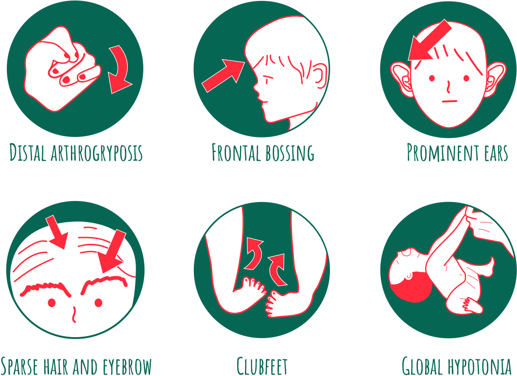 Six features observed in the boy with Schaaf-Yang syndrome at birth