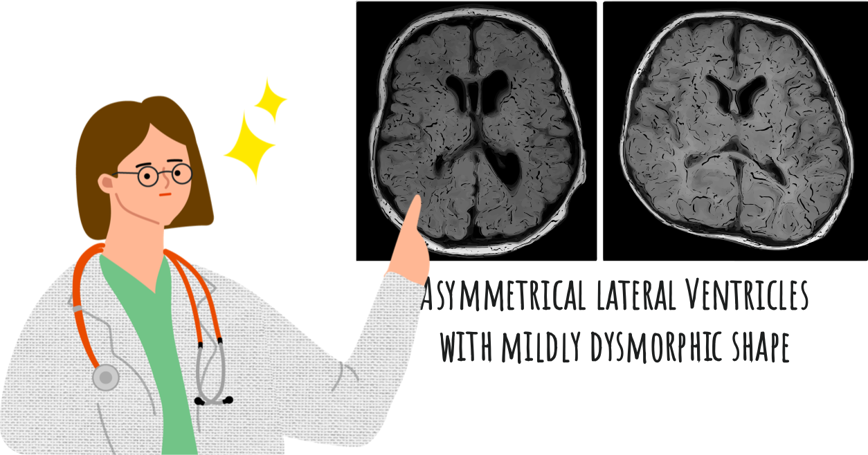A female doctor taking closer look at the brain MRI result showing asymmetrical lateral ventricles with a mildly dysmorphic shape