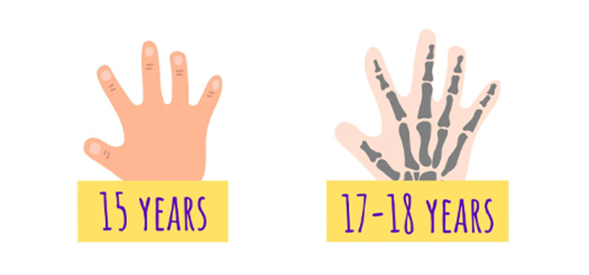 Two hands showing that the bone age is older than the actual age