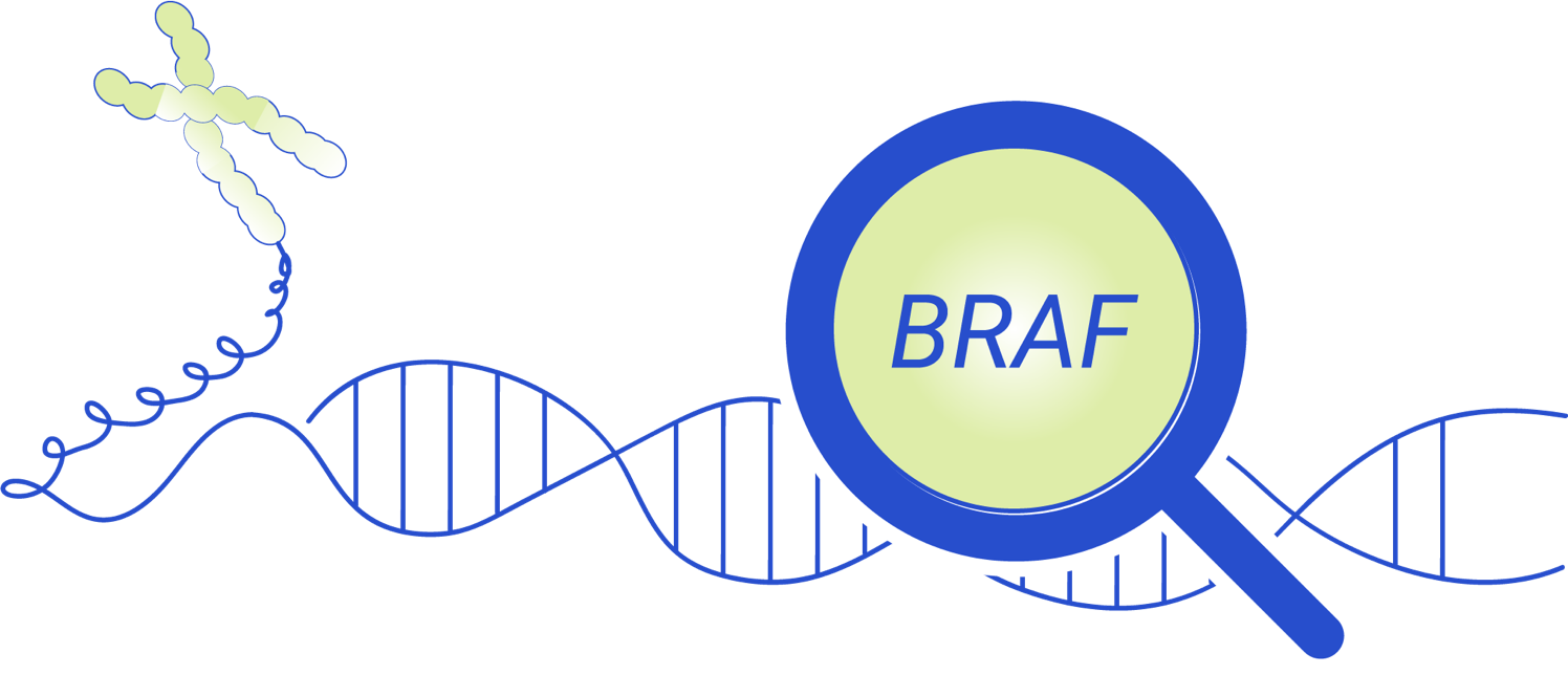 The whole exome sequencing result found a de novo genetic variant in the BRAF gene.