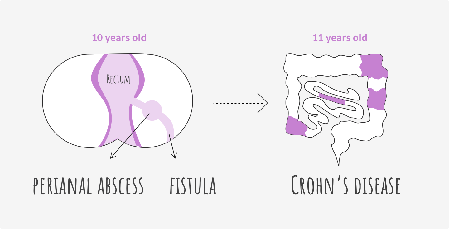 Illustration of perianal abscess and fistula. James was then diagnosed with Crohn's disease when at age 11.