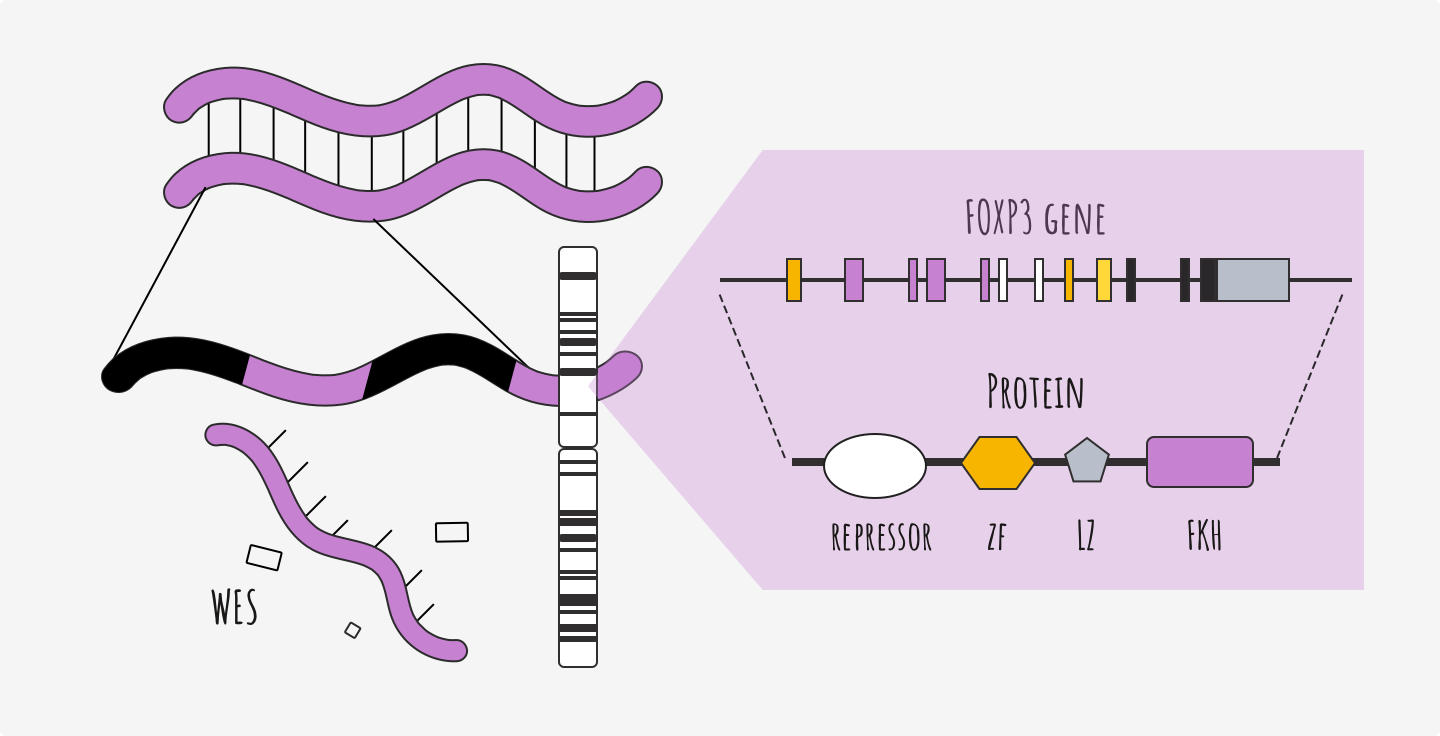 Whole exome sequencing has found pathogenetic variant on the FOXP3 gene.