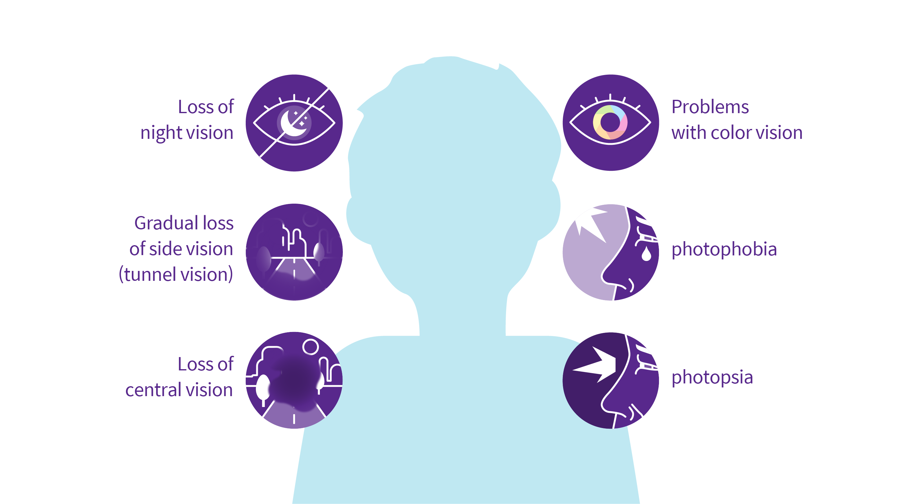 Six symptoms of Retinitis pigmentosa: Loss of night vision, Gradual loss of side vision(tunnel vision), Loss of central vision, Problems with color vision, photophobia, photopsia