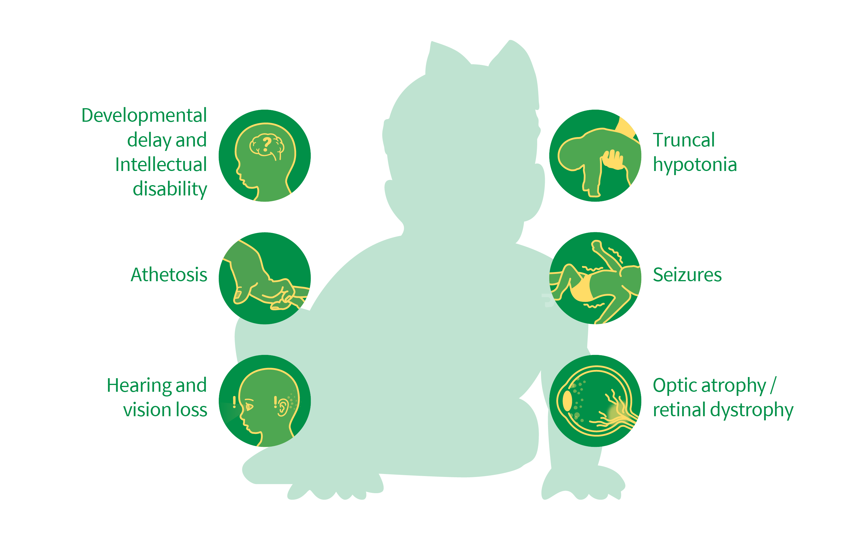 Seven symptoms of INFANTILE CEREBELLAR-RETINAL DEGENERATION: Developmental delay and intellectual disability, Truncal hypotonia, Athetosis, Seizures, Optic atrophy, Retinal dystrophy, Hearing and vision loss