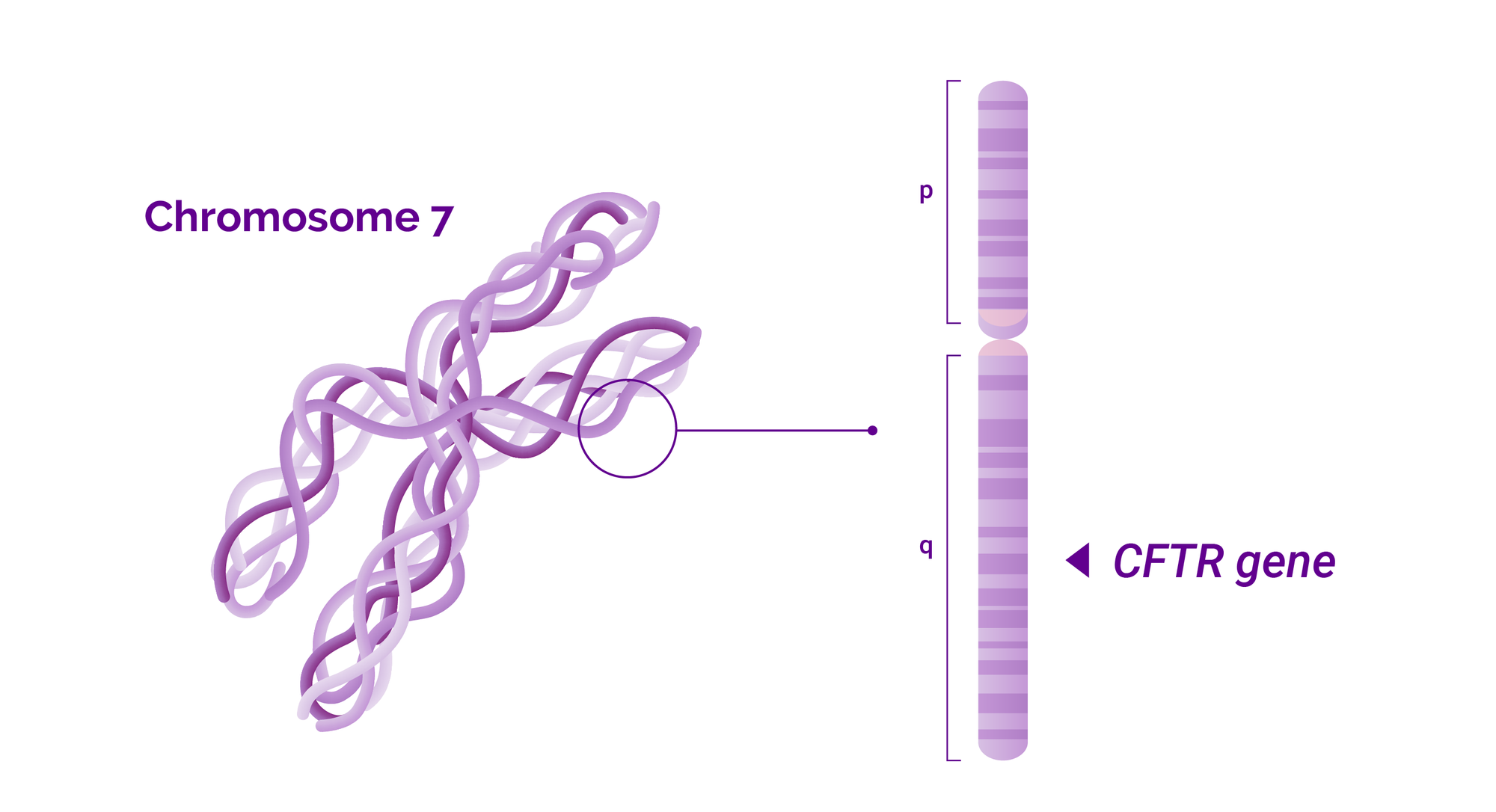 Chromosome 7 and the location of Cystic fibrosis related CFTR gene in q arm