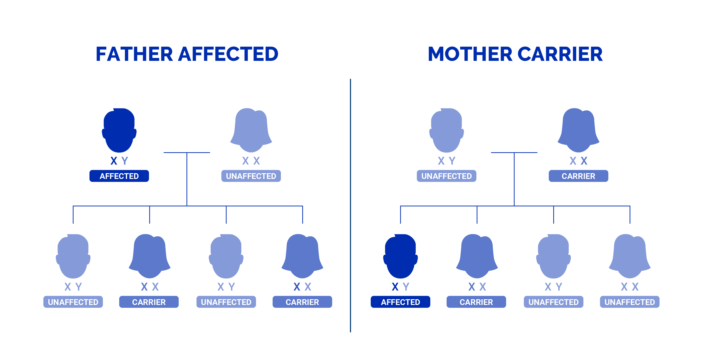 A family tree showing the X-linked recessive inheritance pattern of duchenne and becker muscular dystrophy.