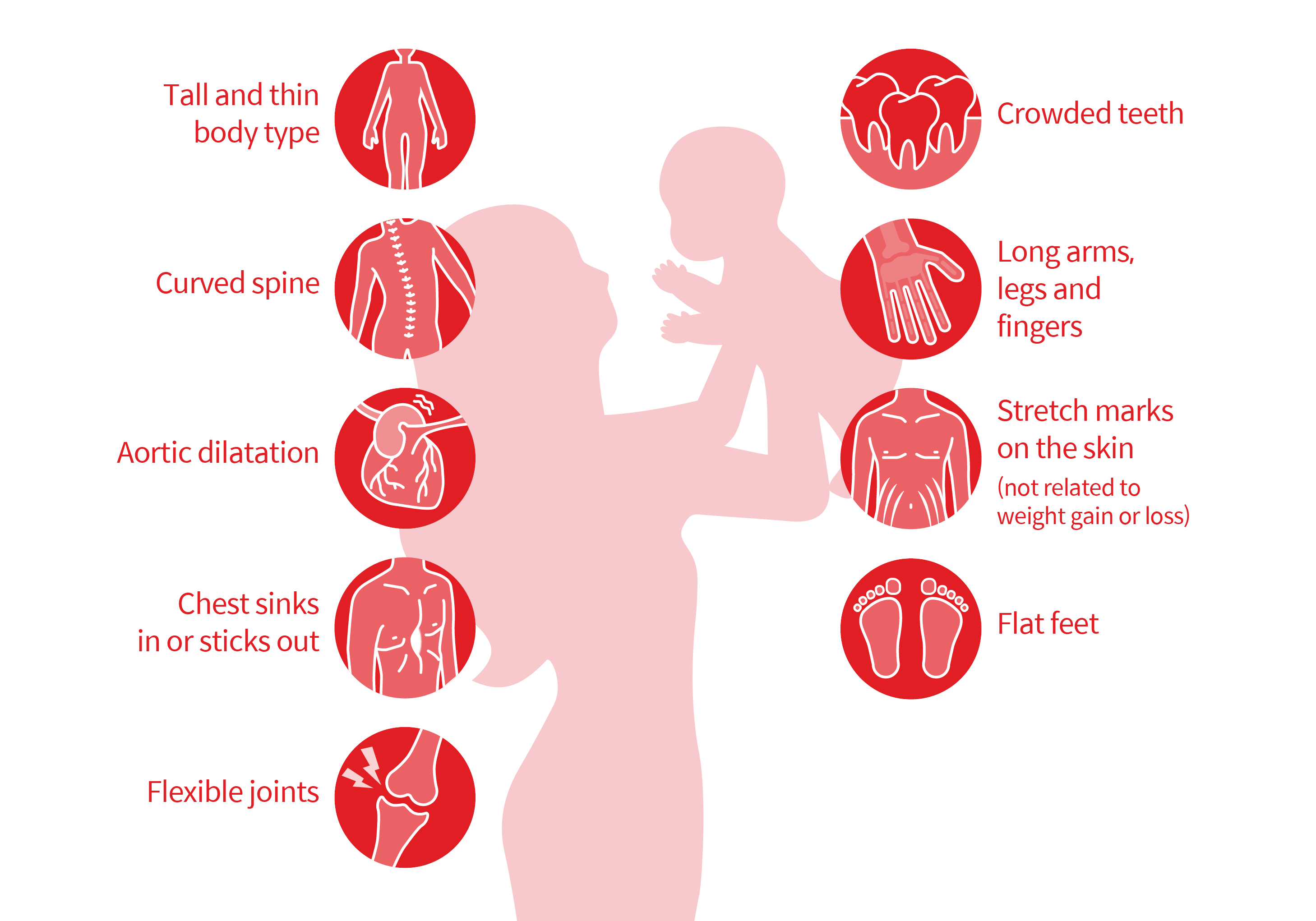 Nine symptoms: Long arms, legs and fingers, Tall and thin body type, Curved spine, Chest sinks in or sticks out, Flexible joints, Aortic dilatation, Flat feet, Crowded teeth, Stretch marks on the skin (not related to weight gain or loss)