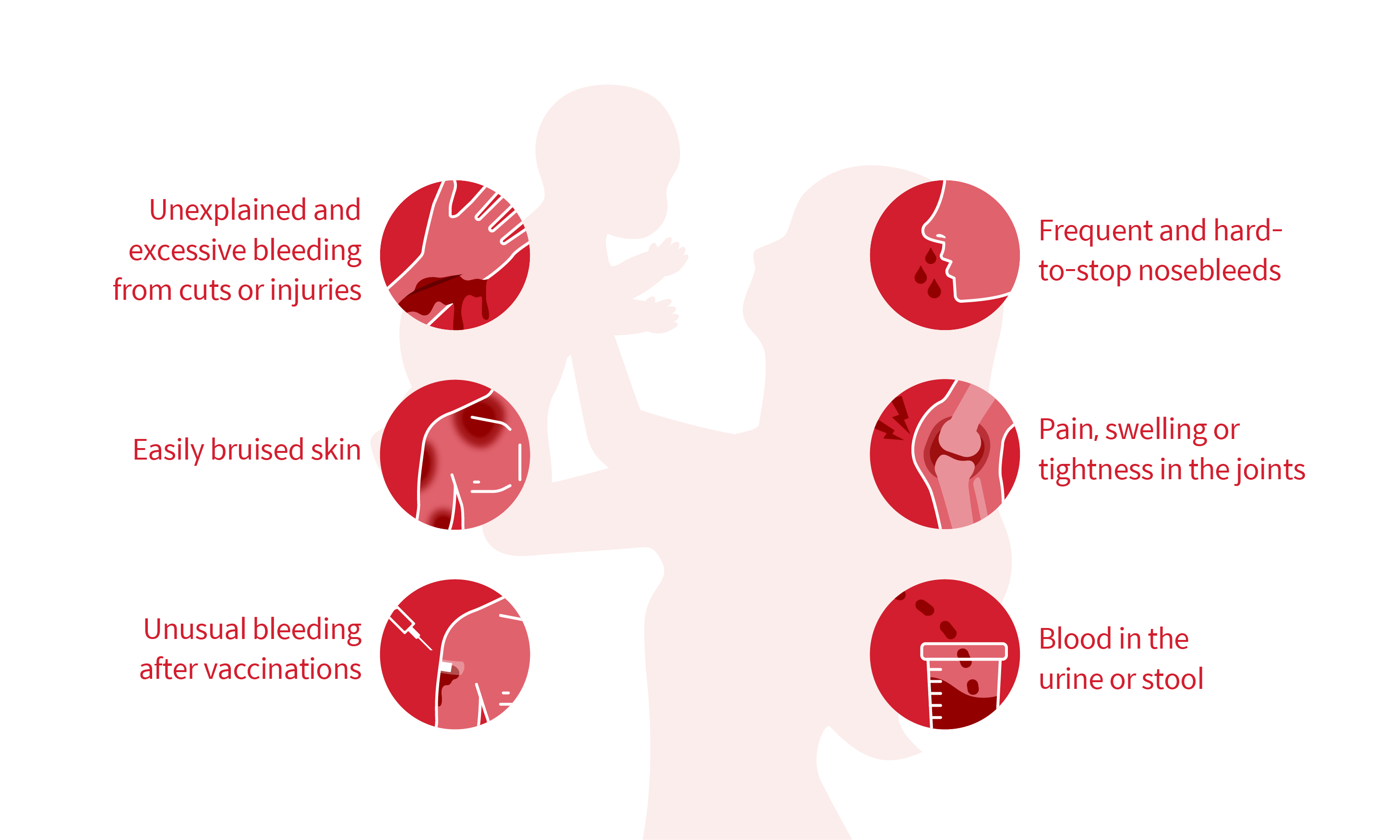 Six symptoms of Hemophilia: Unexplained and excessive bleeding from injuries, Easily bruised skin, Unusual bleeding after vaccinations, Pain, swelling or tightness in the joints, Blood in the urine or stool, Frequent and hard-to-stop nosebleeds
